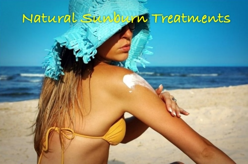 Natural Sunburn Treatments
