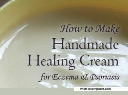 DIY Neem Cream For Eczema And Psoriasis
