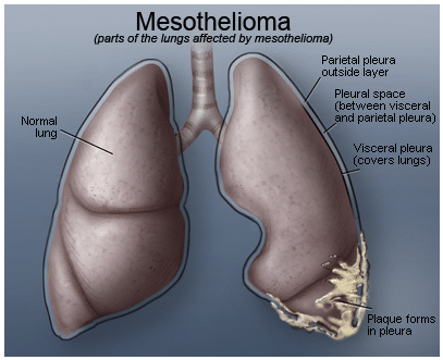 Asbestos-And-Mesothelioma-Cancer-Awareness_1