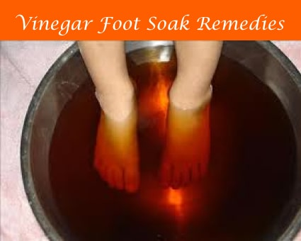 7 Vinegar Foot Soak Recipes
