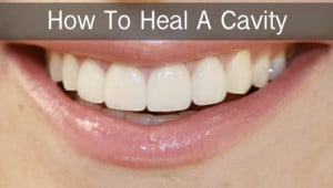 How To Heal Cavities In Teeth