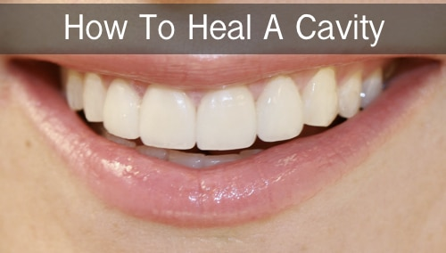How-To-Heal-Cavities-In-Teeth