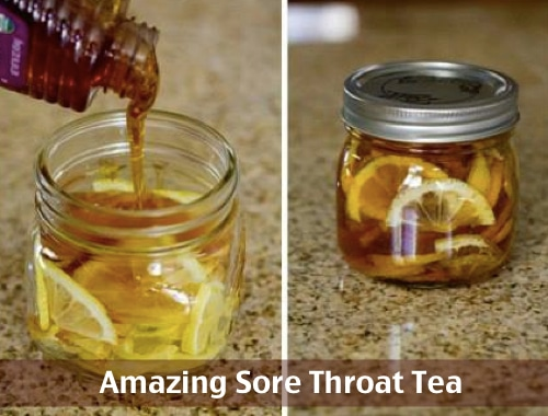 How To Make Amazing Sore Throat Medicine Tea