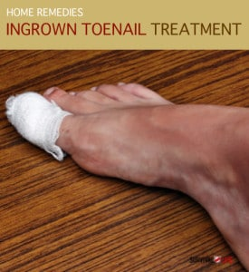 Home Remedy & Ingrown Toenail Treatment