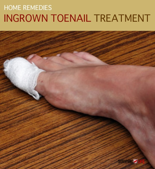 Home-Remedy-And-Ingrown-Toenail-Treatment