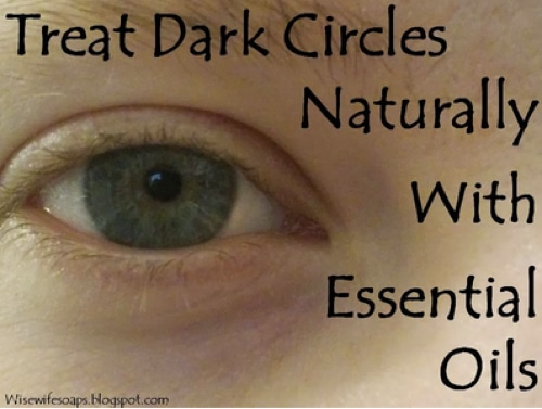 How To Treat Dark Circles With Essential Oils