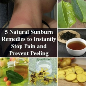 5 Natural Sunburn Relief Remedies To Instantly Stop Pain & Prevent Peeling