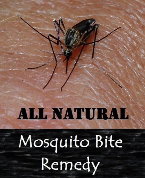 Natural-Mosquito-Bite-Remedy