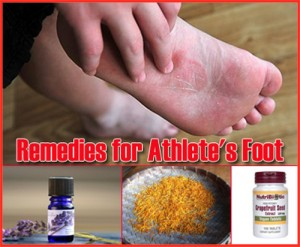 17 Home Remedies For Athletes Foot