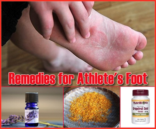 17 Home Remedies For Athletes Foot Homestead Amp Survival