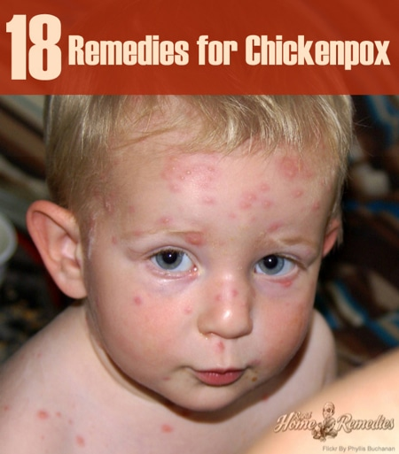 18-Home-Remedies-For-Chicken-Pox