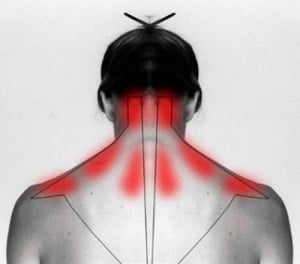 How to Cure Stiff Neck & Ease Pain
