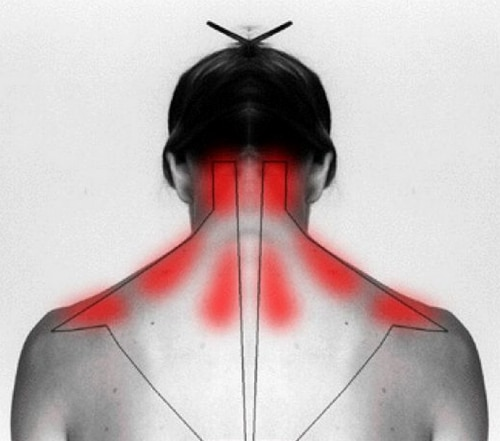 How-To-Cure-Stiff-Neck-And-Ease-Pain