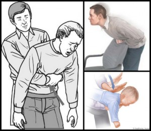 How To Perform The Heimlich Maneuver In 6 Different Situations
