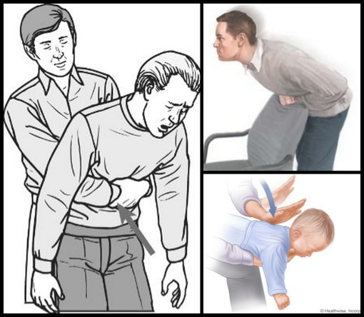 How-To-Perform-The-Heimlich-Maneuver-In-6-Different-Situations