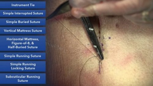 How a doctor learned how to suture - KevinMD.com